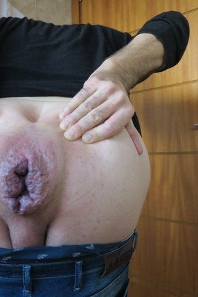 Mr BigHOLE Big Ass Gay vs Bam Huge Dildo