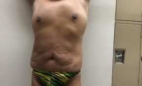 speedo, thong, bikini, undies, swimsuits 2